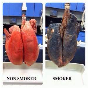 Before and After of Smoker's Lung