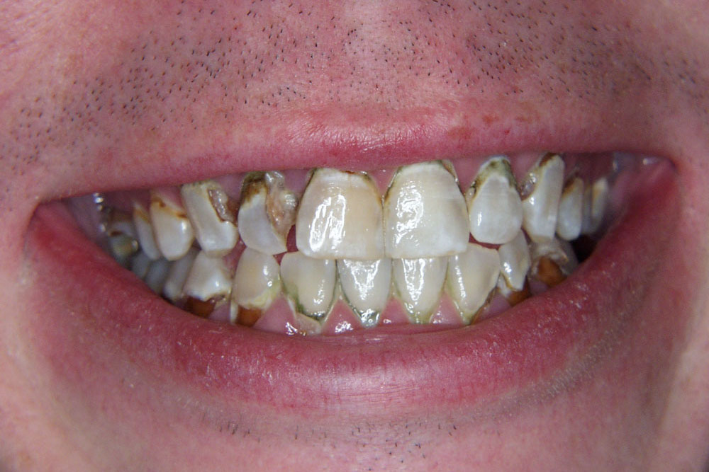 Damage to teeth from e-cigarettes photo